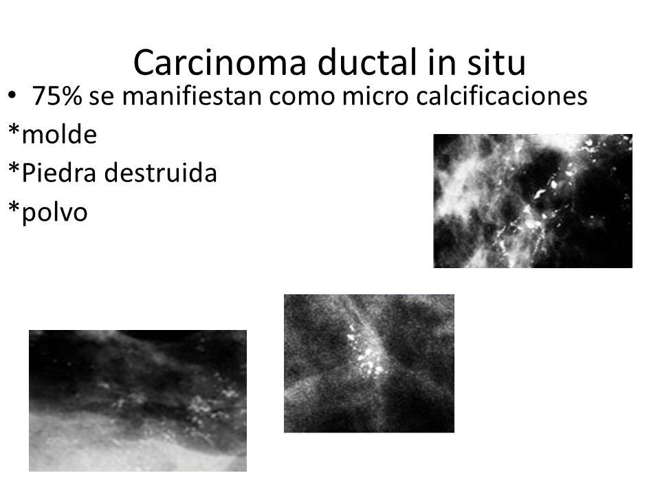 Carcinoma ductal in situ
