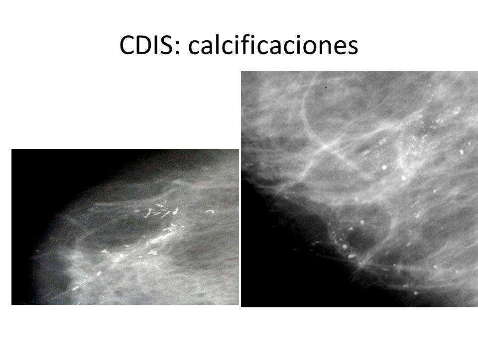 CDIS: calcificaciones