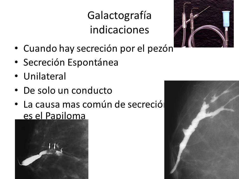 Galactografía indicaciones