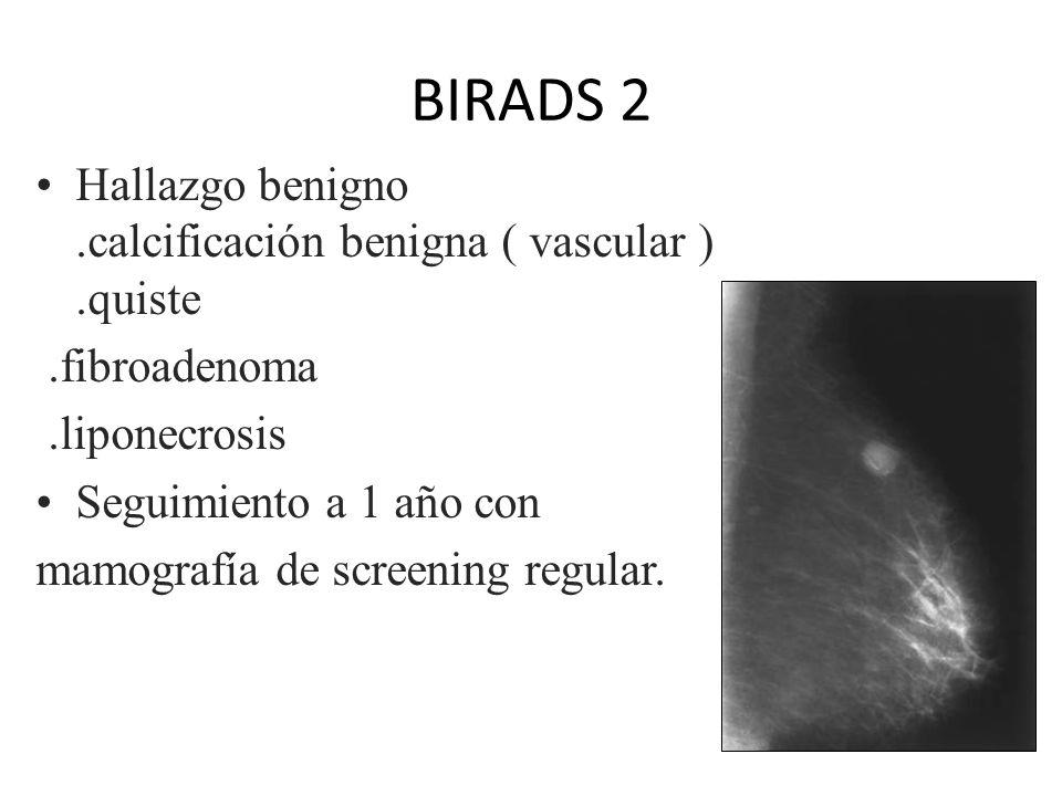 BIRADS 2 Hallazgo benigno .calcificación benigna ( vascular ) .quiste