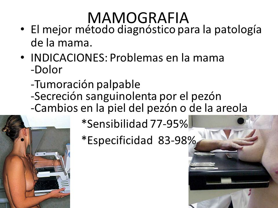 MAMOGRAFIA El mejor método diagnóstico para la patología de la mama.