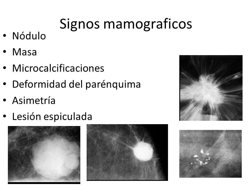 Signos mamograficos Nódulo Masa Microcalcificaciones