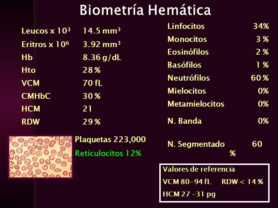 Biometría Hemática Linfocitos 34% Monocitos 3 % Eosinófilos 2 %