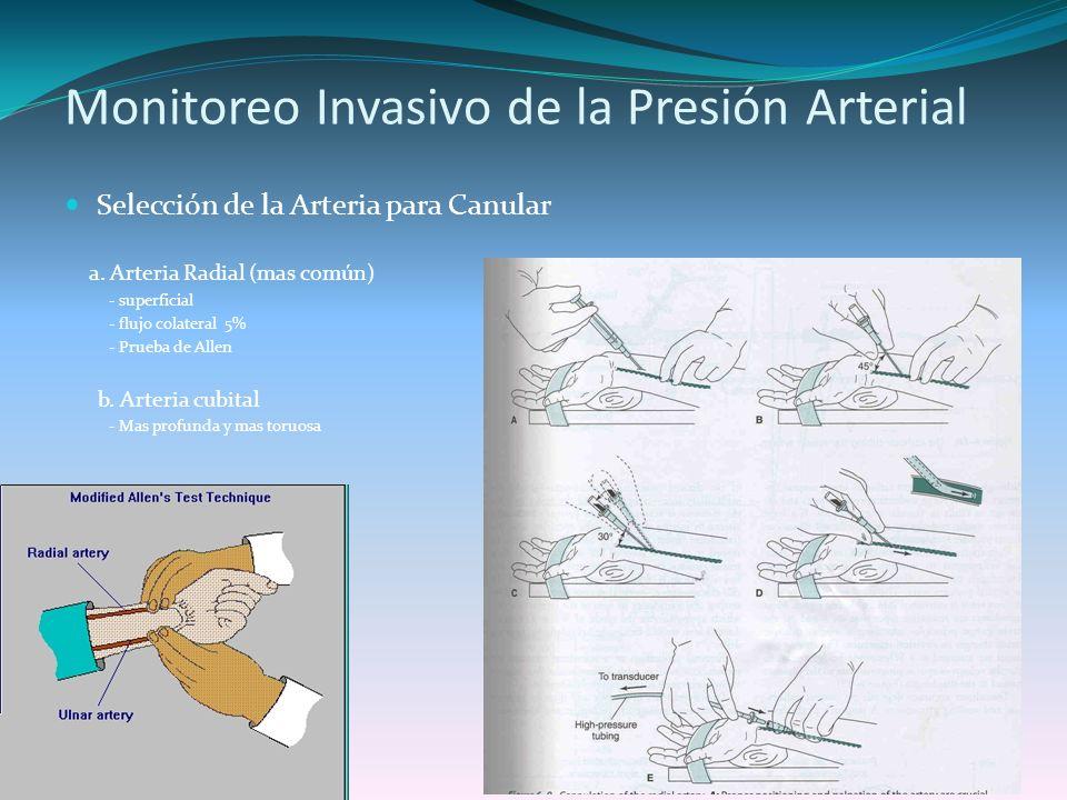 Monitoreo Invasivo de la Presión Arterial