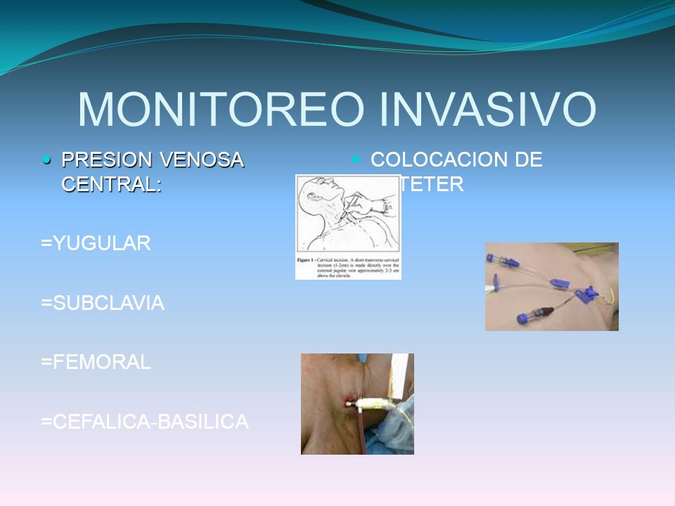 MONITOREO INVASIVO PRESION VENOSA CENTRAL: =YUGULAR =SUBCLAVIA