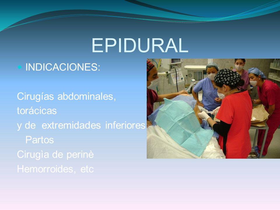 EPIDURAL INDICACIONES: Cirugías abdominales, torácicas