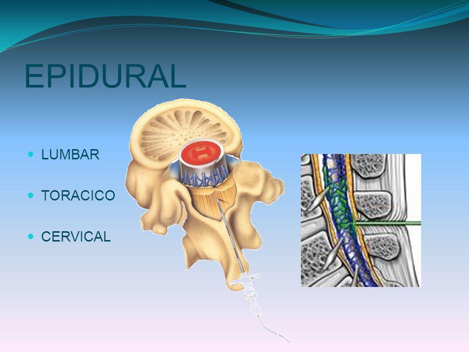 EPIDURAL LUMBAR TORACICO CERVICAL