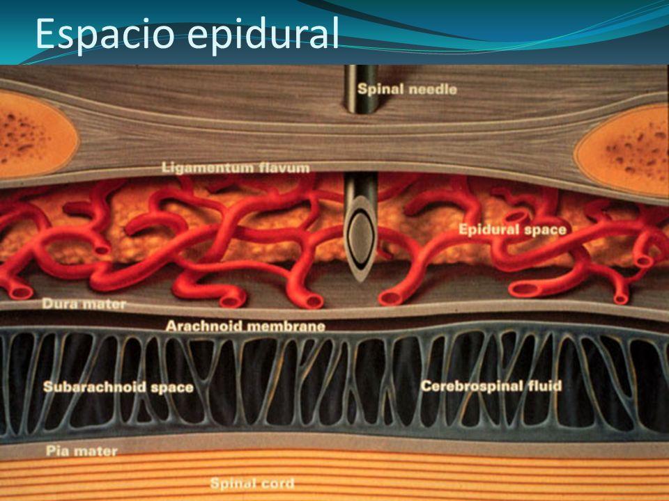 Espacio epidural