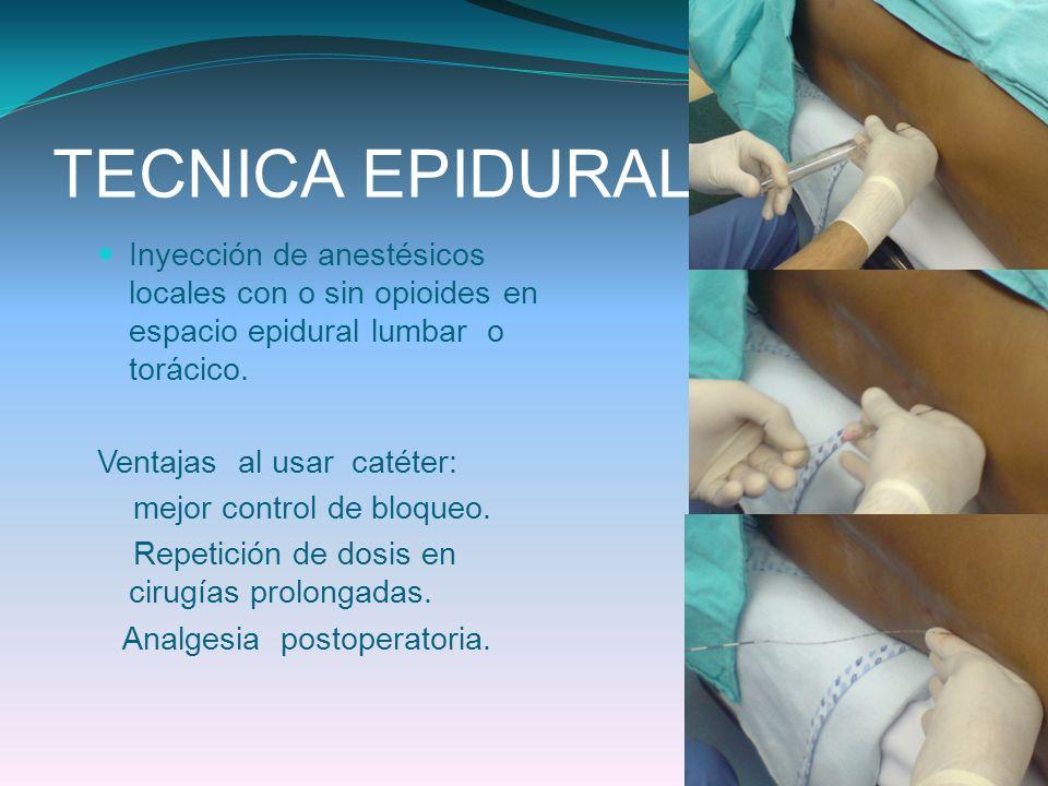 TECNICA EPIDURALInyección de anestésicos locales con o sin opioides en espacio epidural lumbar o torácico.