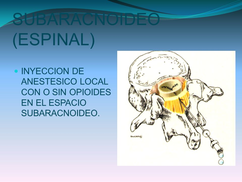 SUBARACNOIDEO (ESPINAL)