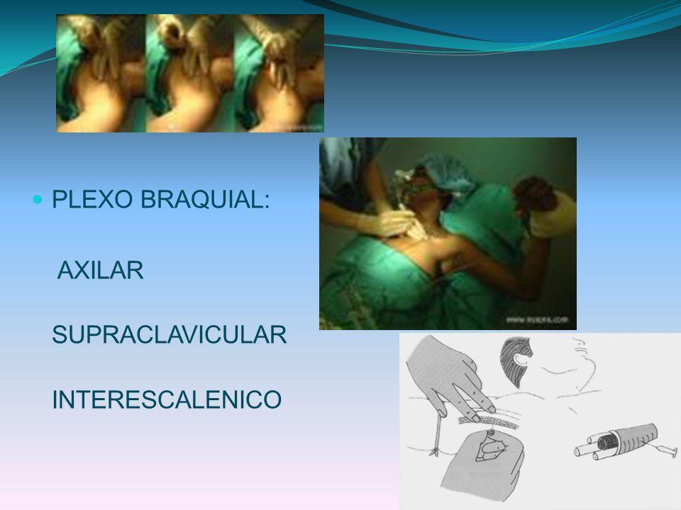 PLEXO BRAQUIAL: AXILAR SUPRACLAVICULAR INTERESCALENICO
