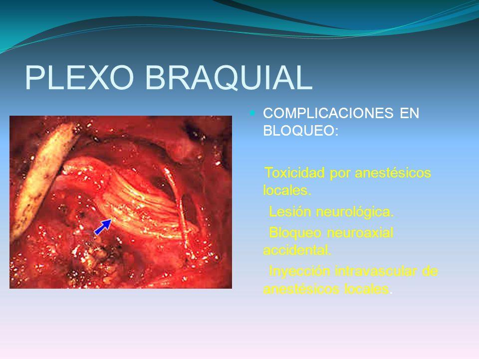 PLEXO BRAQUIAL COMPLICACIONES EN BLOQUEO: