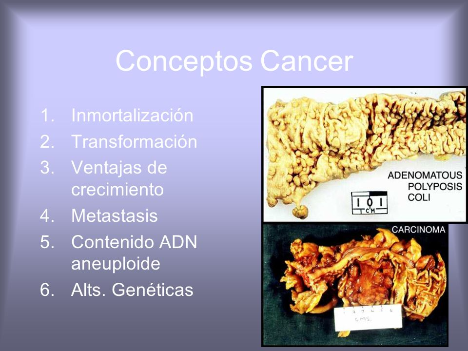 Conceptos Cancer Inmortalización Transformación