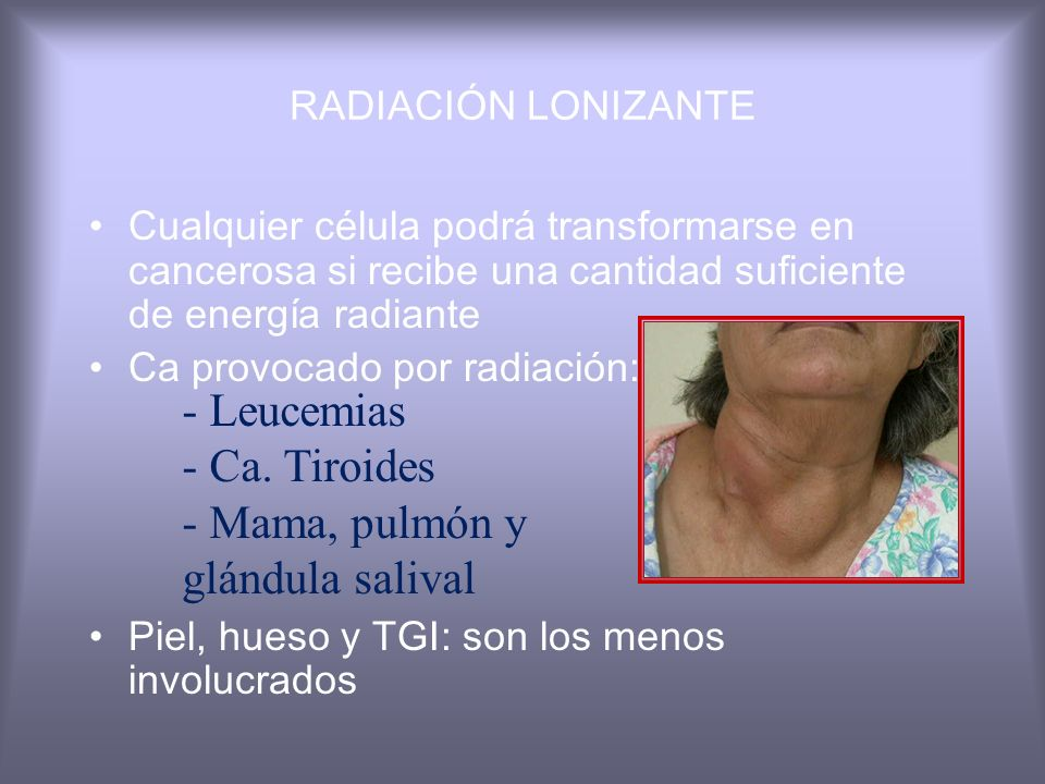 - Mama, pulmón y glándula salival
