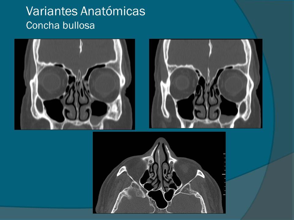 Variantes Anatómicas Concha bullosa