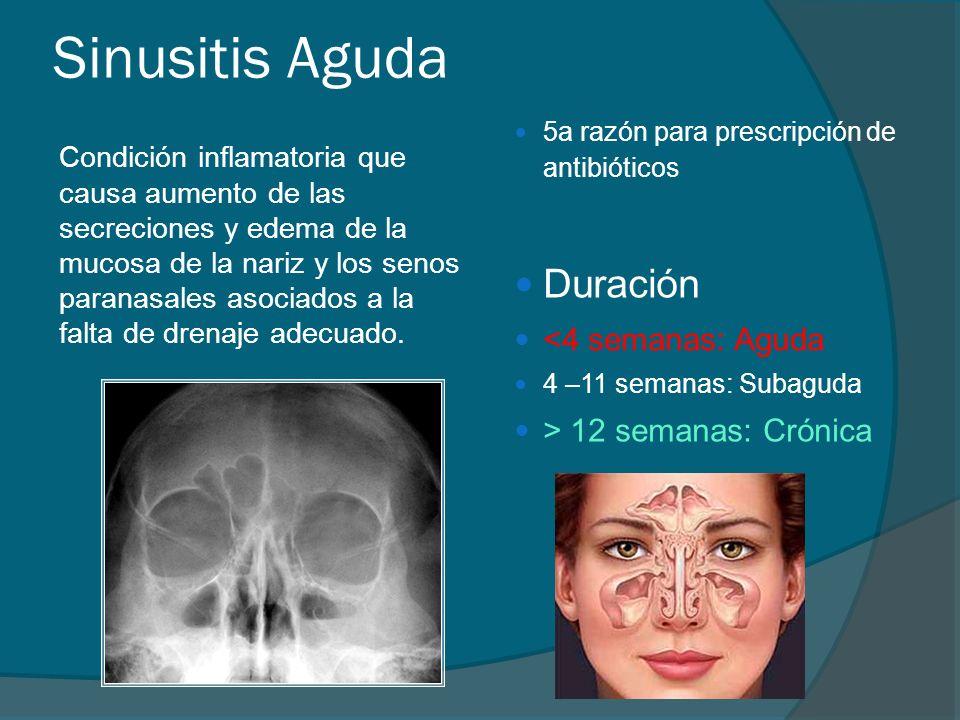 Sinusitis Aguda Duración <4 semanas: Aguda > 12 semanas: Crónica