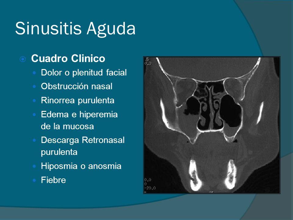 Sinusitis Aguda Cuadro Clinico Dolor o plenitud facial