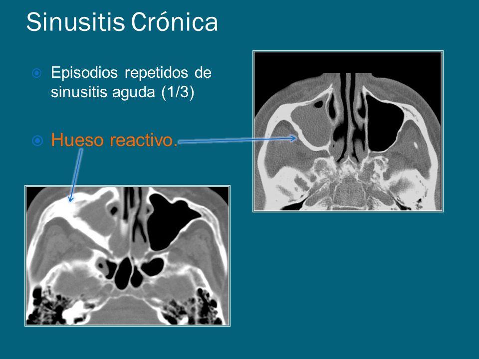 Sinusitis Crónica Hueso reactivo.