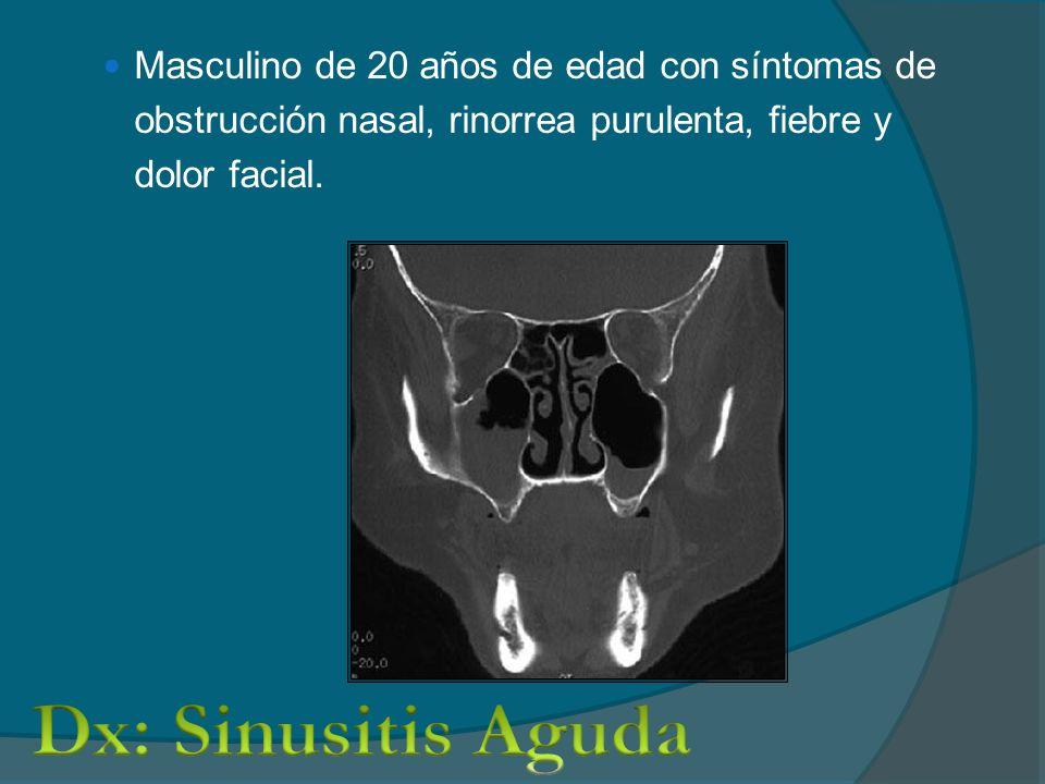 Masculino de 20 años de edad con síntomas de obstrucción nasal, rinorrea purulenta, fiebre y dolor facial.