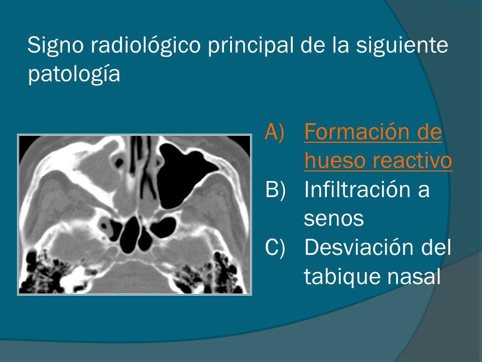 Signo radiológico principal de la siguiente patología