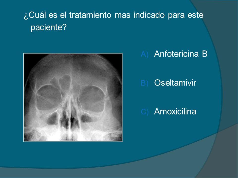¿Cuál es el tratamiento mas indicado para este paciente