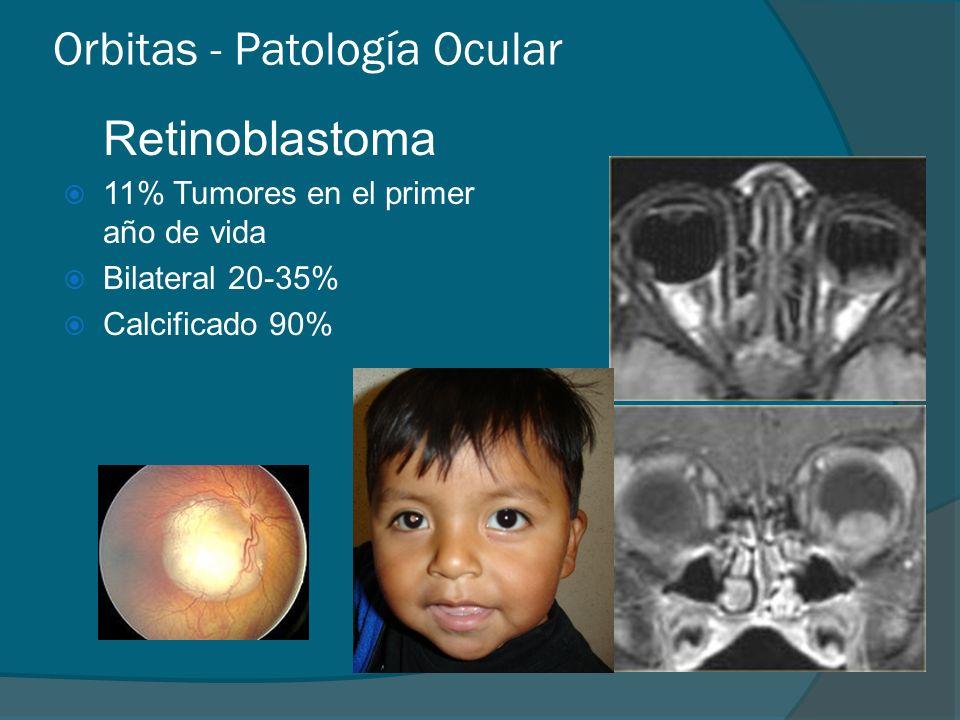 Orbitas - Patología Ocular