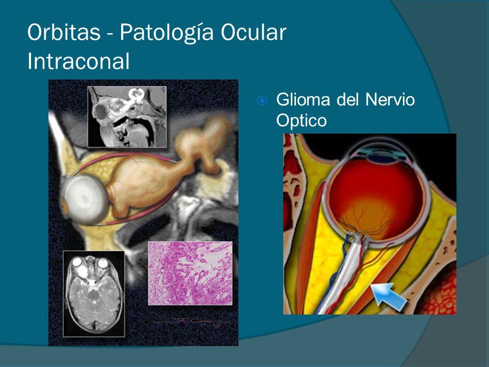 Orbitas - Patología Ocular Intraconal