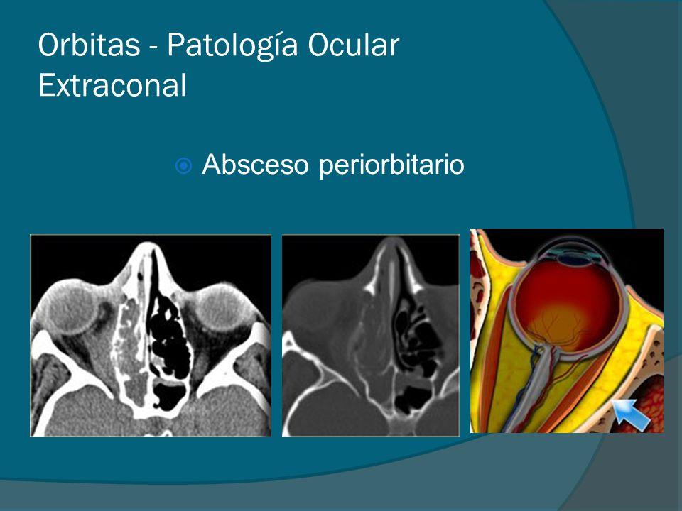 Orbitas - Patología Ocular Extraconal