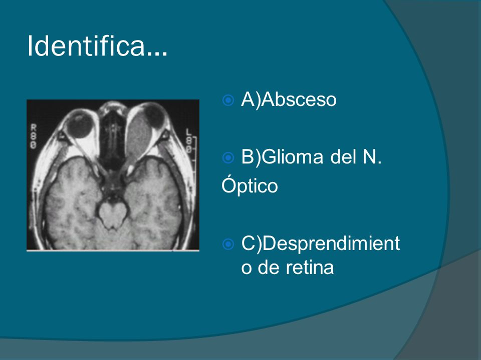 Identifica… A)Absceso B)Glioma del N. Óptico