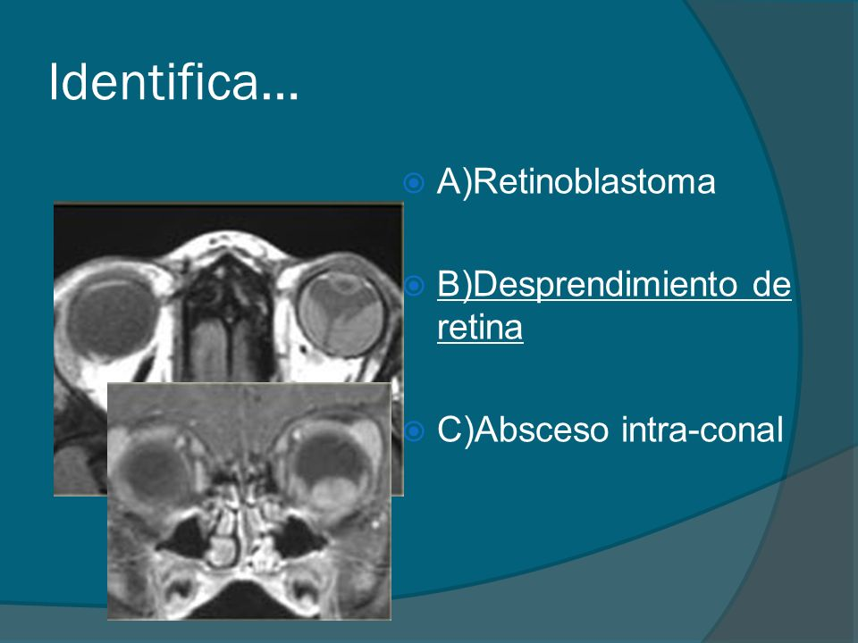 Identifica… A)Retinoblastoma B)Desprendimiento de retina