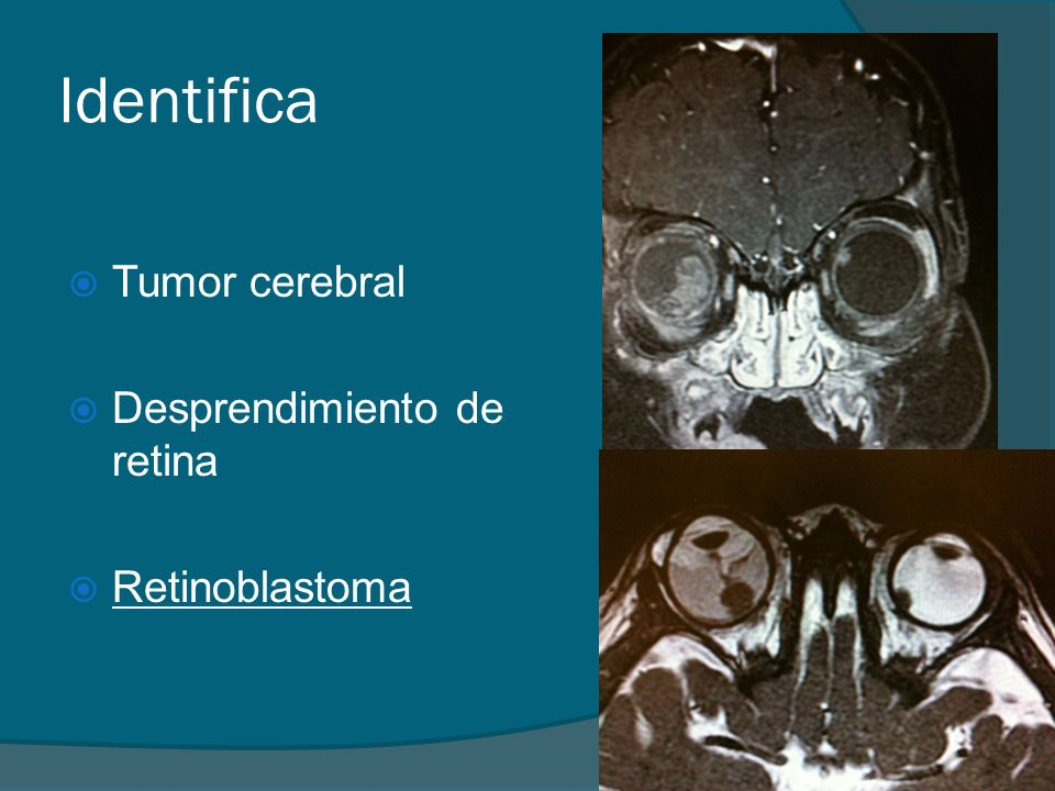 Identifica Tumor cerebral Desprendimiento de retina Retinoblastoma