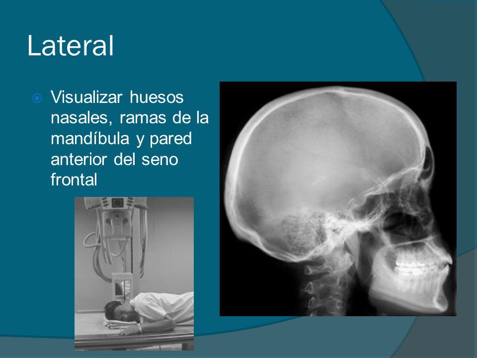 Lateral Visualizar huesos nasales, ramas de la mandíbula y pared anterior del seno frontal
