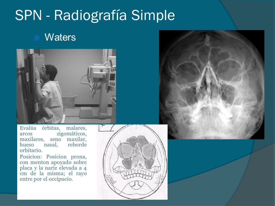 SPN - Radiografía Simple