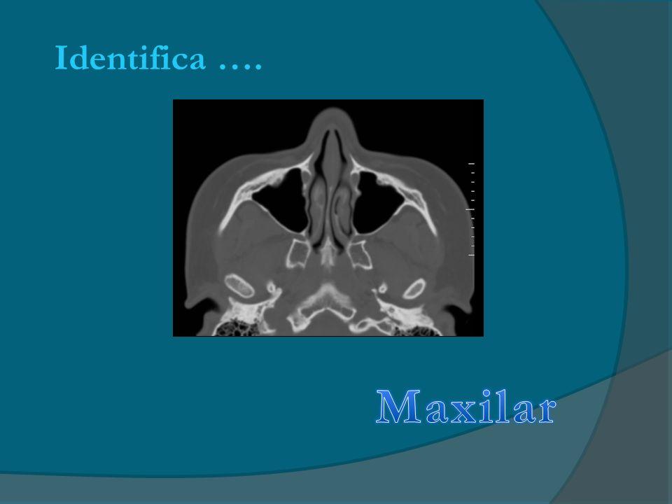 Identifica …. Maxilar