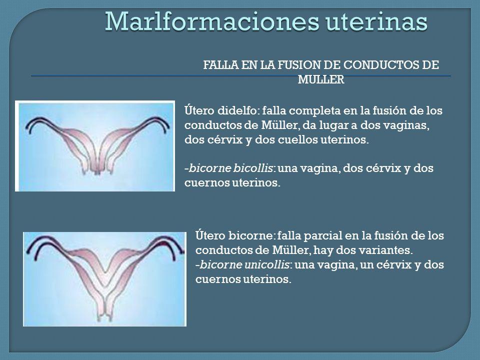 Marlformaciones uterinas