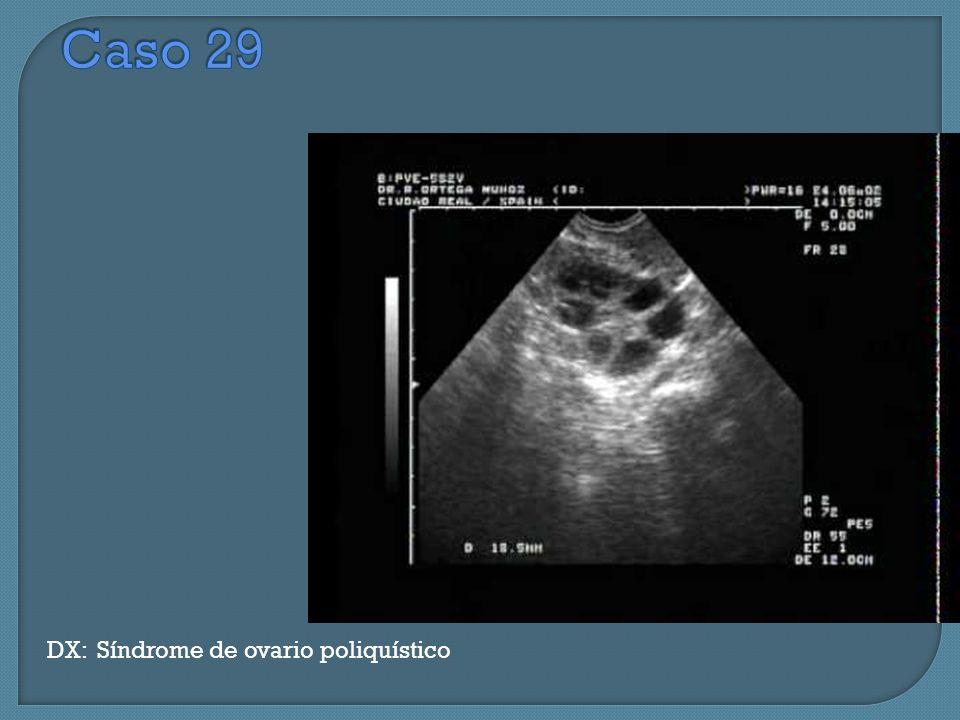 Caso 29 DX: Síndrome de ovario poliquístico