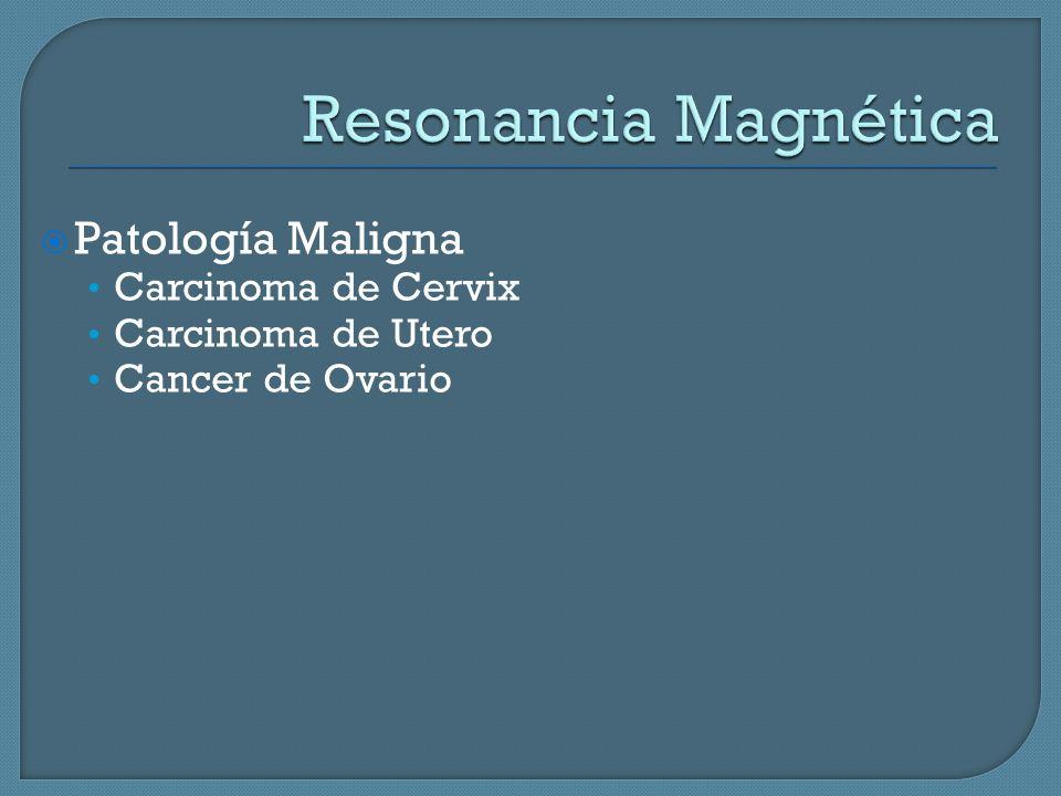 Resonancia Magnética Patología Maligna Carcinoma de Cervix