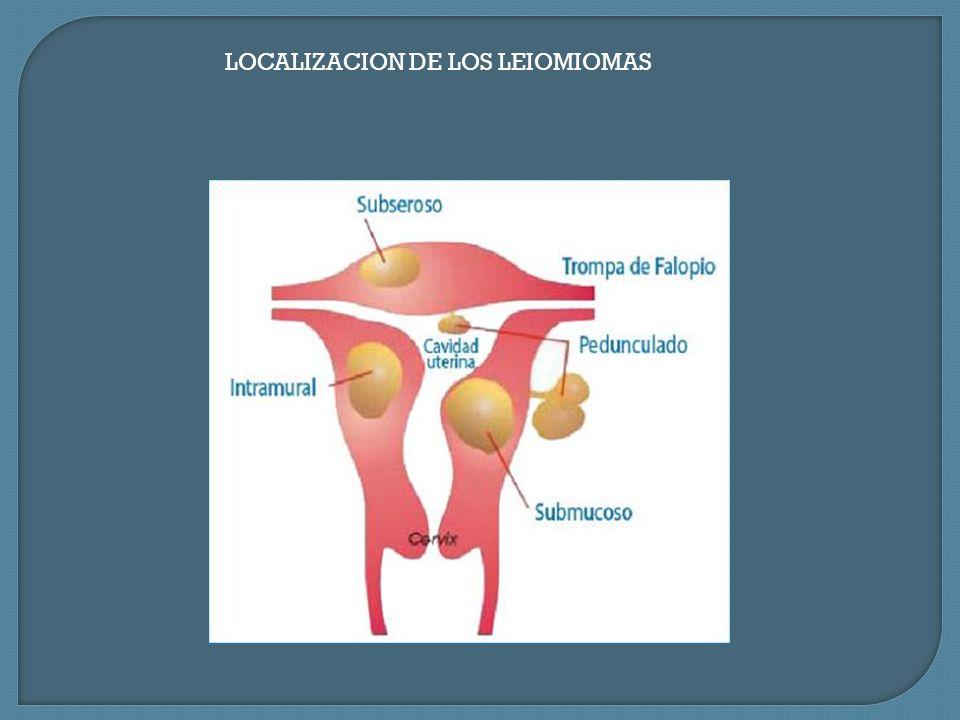 LOCALIZACION DE LOS LEIOMIOMAS