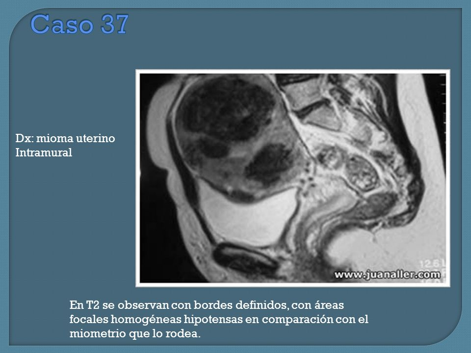 Caso 37 Dx: mioma uterino Intramural