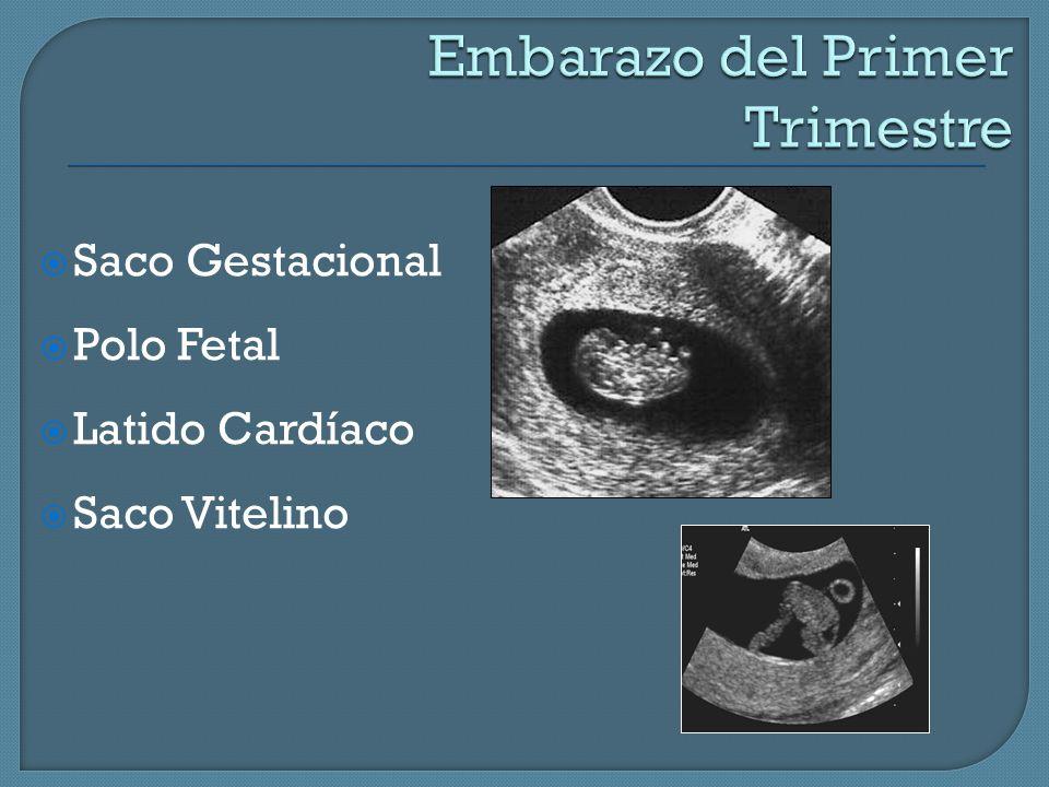 Embarazo del Primer Trimestre