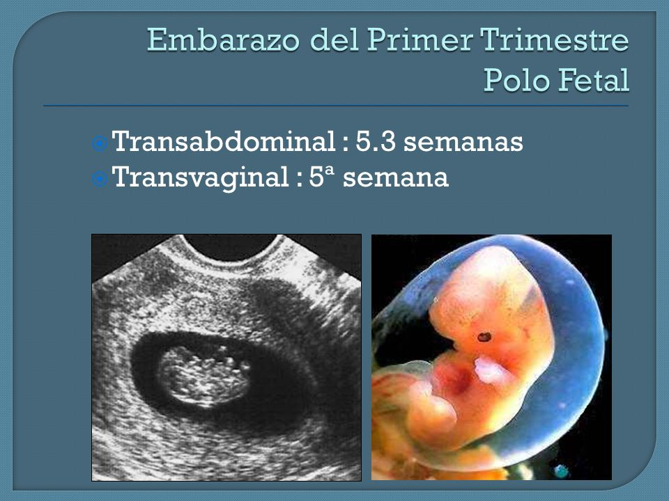 Embarazo del Primer Trimestre Polo Fetal