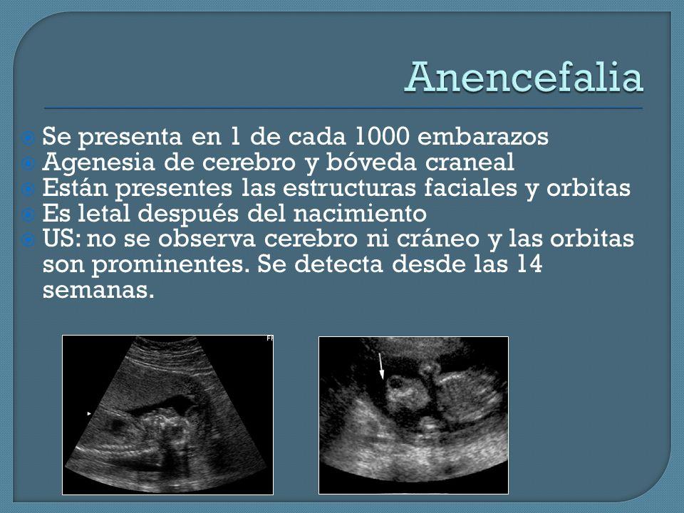 Anencefalia Se presenta en 1 de cada 1000 embarazos