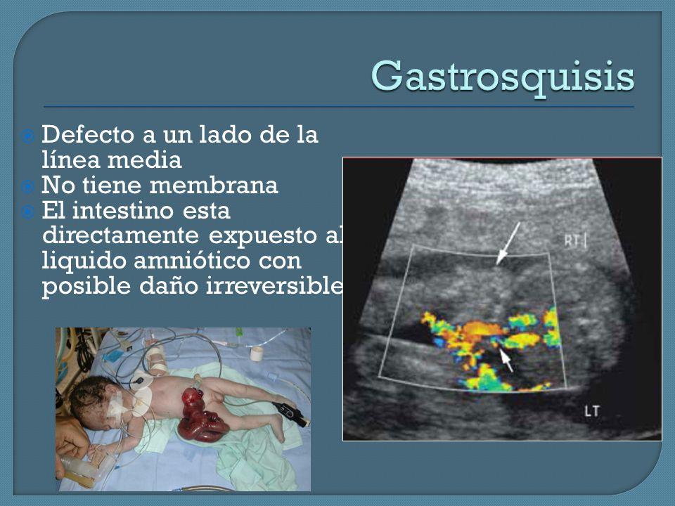 Gastrosquisis Defecto a un lado de la línea media No tiene membrana