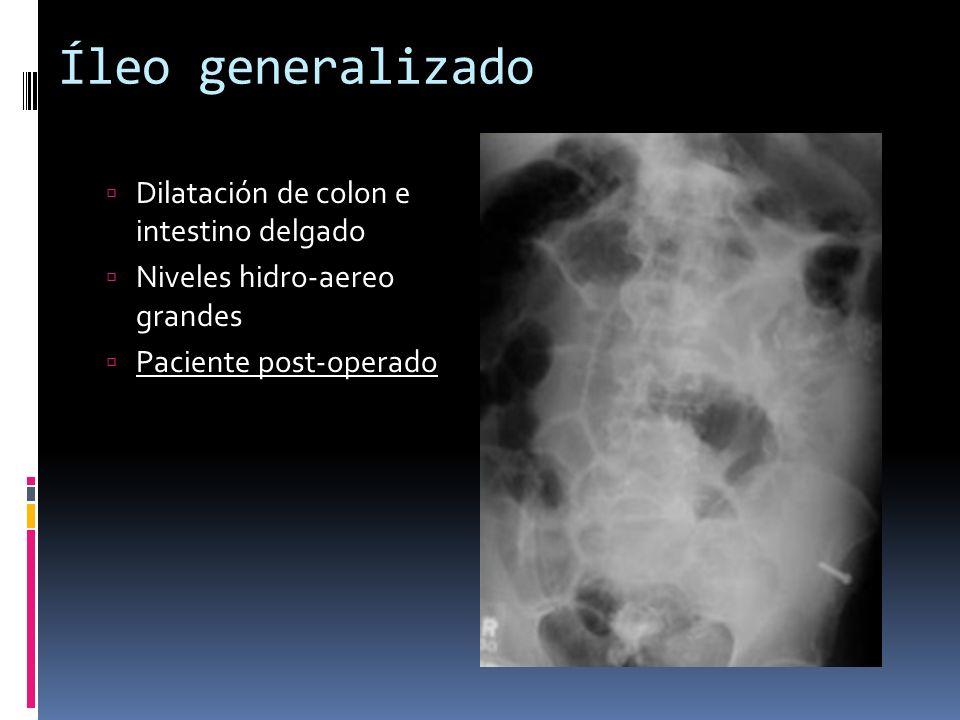 Íleo generalizado Dilatación de colon e intestino delgado