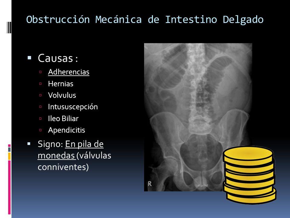 Obstrucción Mecánica de Intestino Delgado