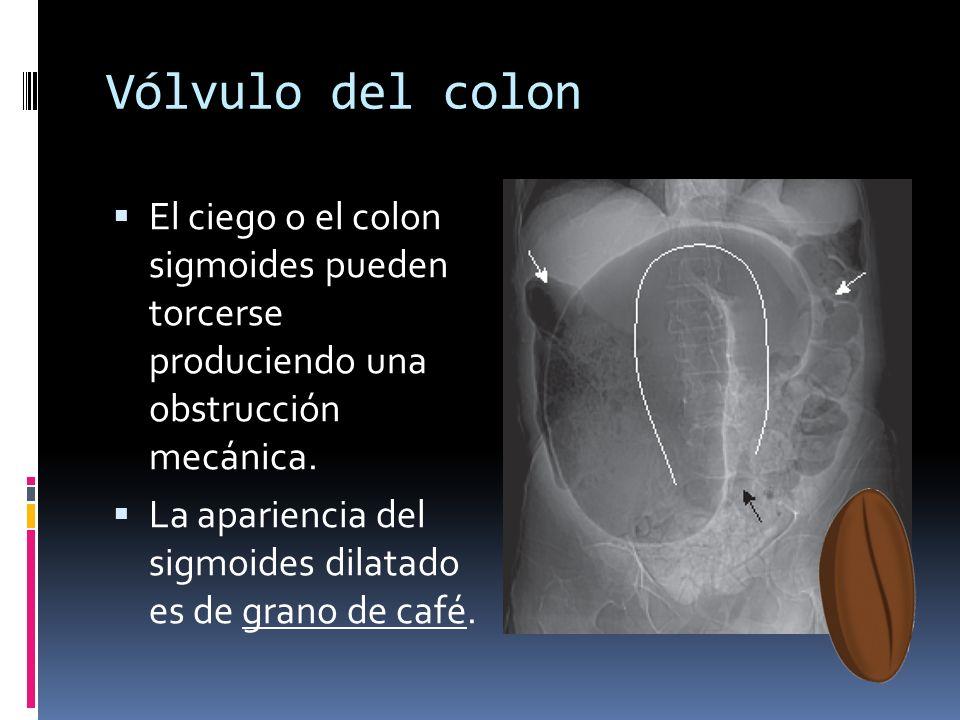 Vólvulo del colon El ciego o el colon sigmoides pueden torcerse produciendo una obstrucción mecánica.