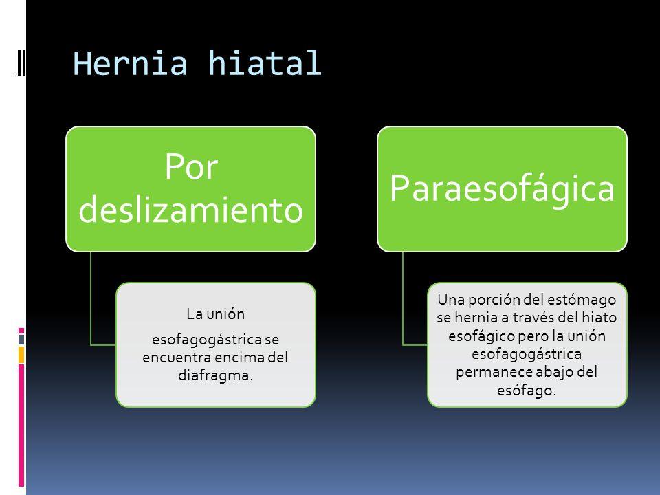 esofagogástrica se encuentra encima del diafragma.