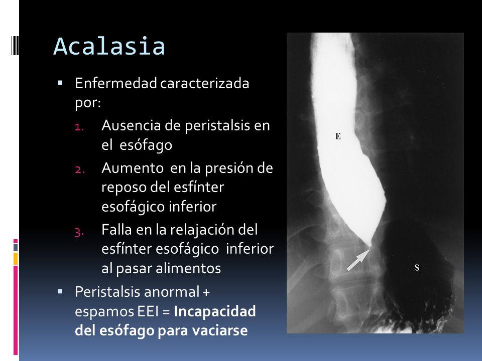 Acalasia Enfermedad caracterizada por: