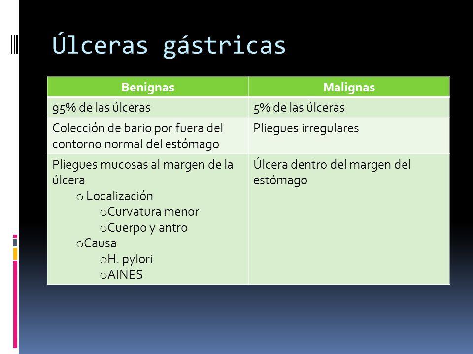 Úlceras gástricas Benignas Malignas 95% de las úlceras