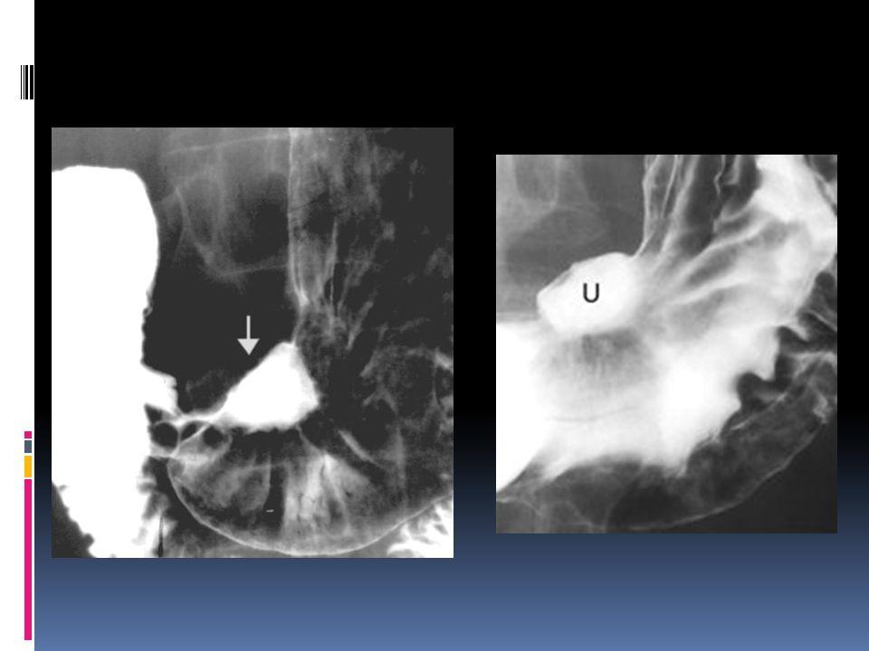 Úlcera gástrica maligna - Como pueden apreciar, se respeta el borde del estómago; como recordarán los tumores de estómago crecen hacia la luz, y éste es el que se ulcera, por lo tanto el contraste se acumula dentro de la úlcera que se encuentra en el tumor.